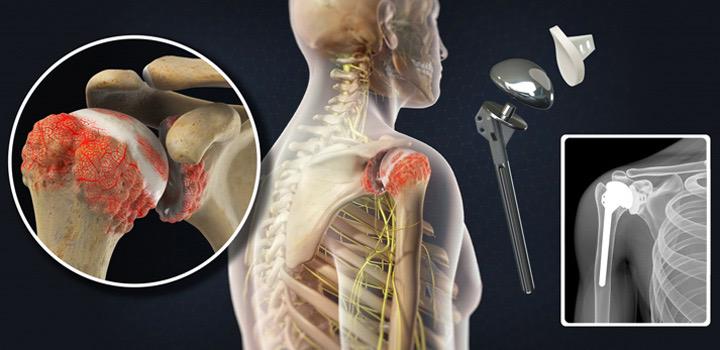 Visual diagnostics of shoulder Anatomy
