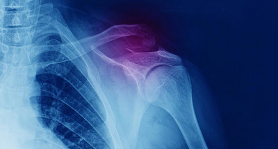what-is-a-shoulder-fracture